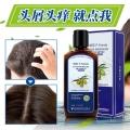 賽生銀友帶來預防頭部毛囊炎的具體辦法