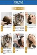 頭屑越洗越多你需要知道這4個原因